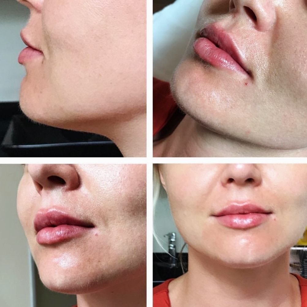 Before and After Lip Filler North Brisbane
