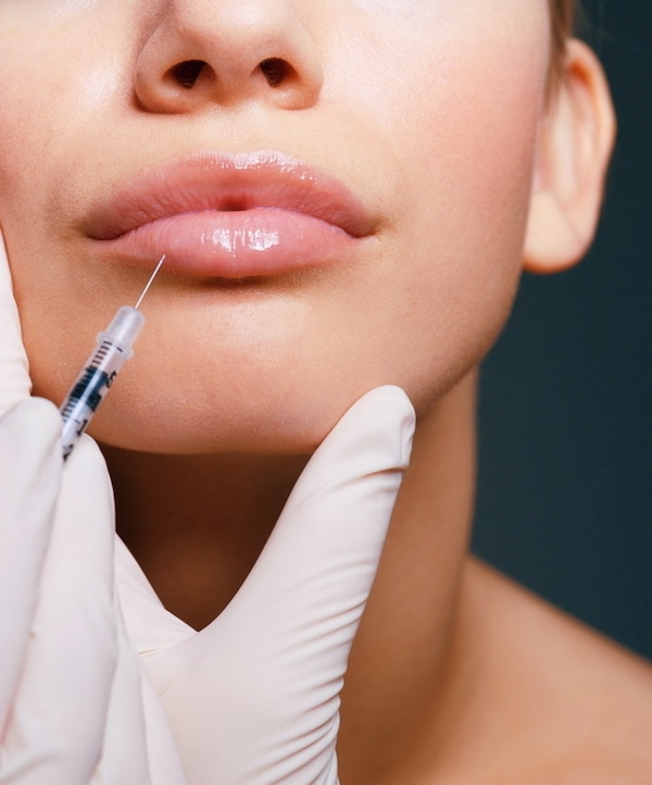 Hyaluronic Lip Filler at Wilston Aspley North Brisbane