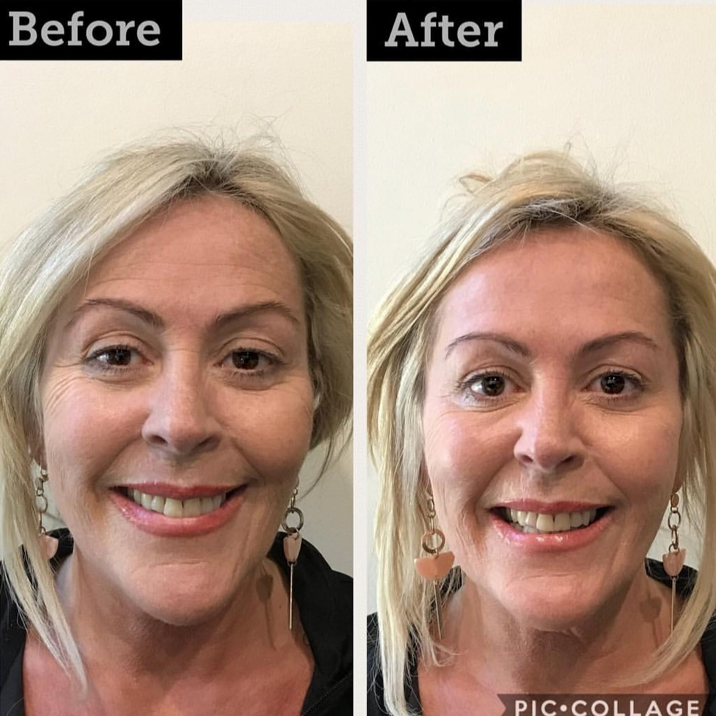 Before And After Anti Wrinkle Injectables Medispa Aspley Wilston North Brisbane