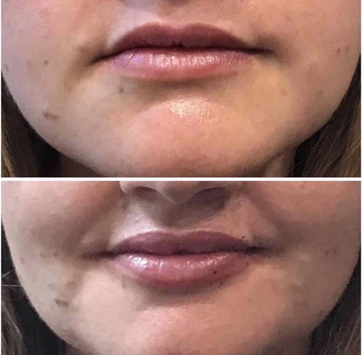 Before and After Lip Filler Aspley Wilston Brisbane