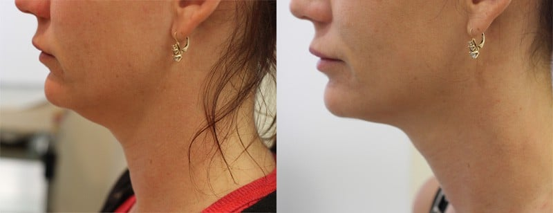 Lipodissolve Brisbane | Before And After Photos Of A Double Chin Fat Reduction Treatment