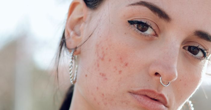 What Is Tretinoin And How Does It Work On Acne